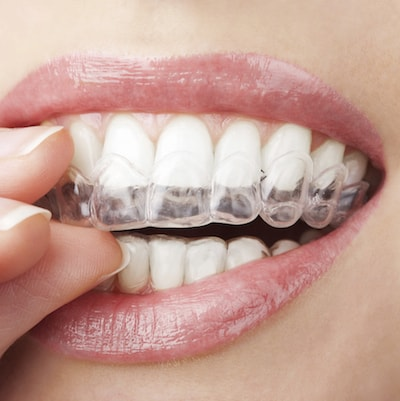 Our Charlottesville Dental Services include orthodontics such as Invisalign