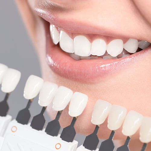 Cosmetic Dentistry in Charlottesville VA offers Dental Veneers to patients